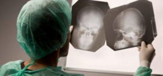 Судебно-медицинская экспертиза черепно-мозговой травмы