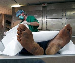 Судебно-медицинская экспертиза умерших